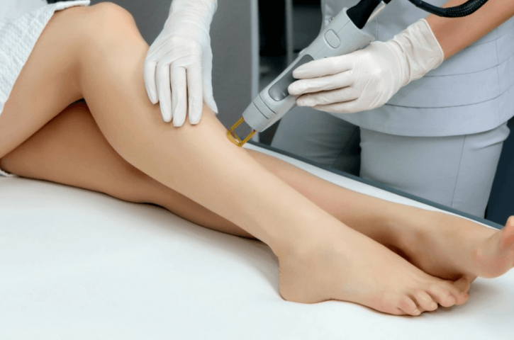 What to Expect when You Miss a Laser Hair Removal Session